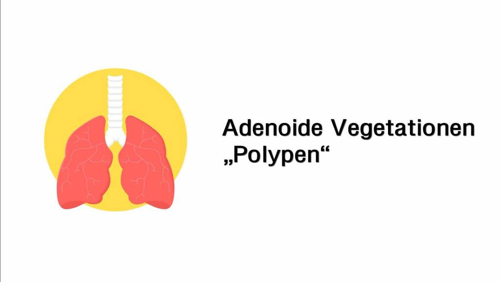 Adenoide Vegetationen