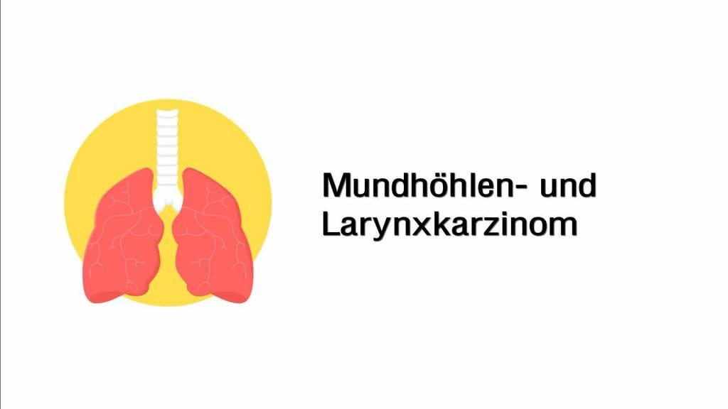 Mundhöhlenkarzinom und Larynxkarzinom