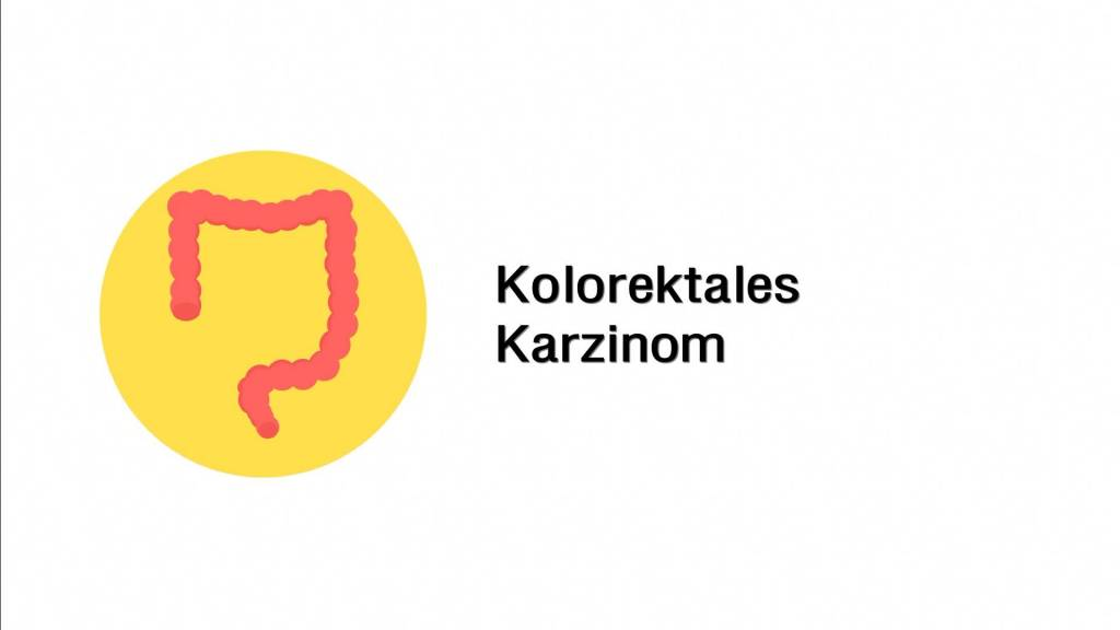 Kolorektales Karzinom