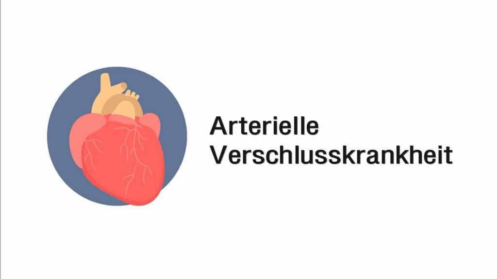 Arterielle Verschlusskrankheit