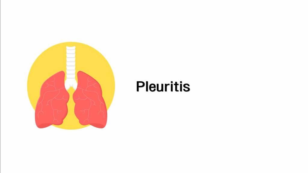Pleuritis